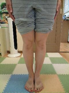 20代女性 主訴:O脚
