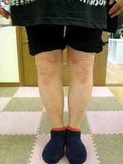 50代女性 主訴:O脚