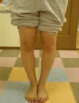 20代女性 主訴:O脚・膝下O脚